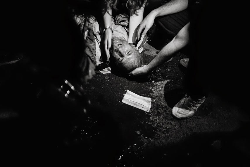 Protesters assist a wounded man lying on the ground, Istanbul, 04/06/2013